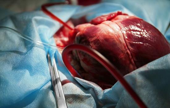 بخش جراحی قلب